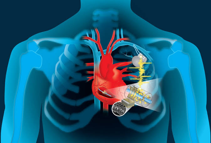 Eventually a self-powered pacemaker