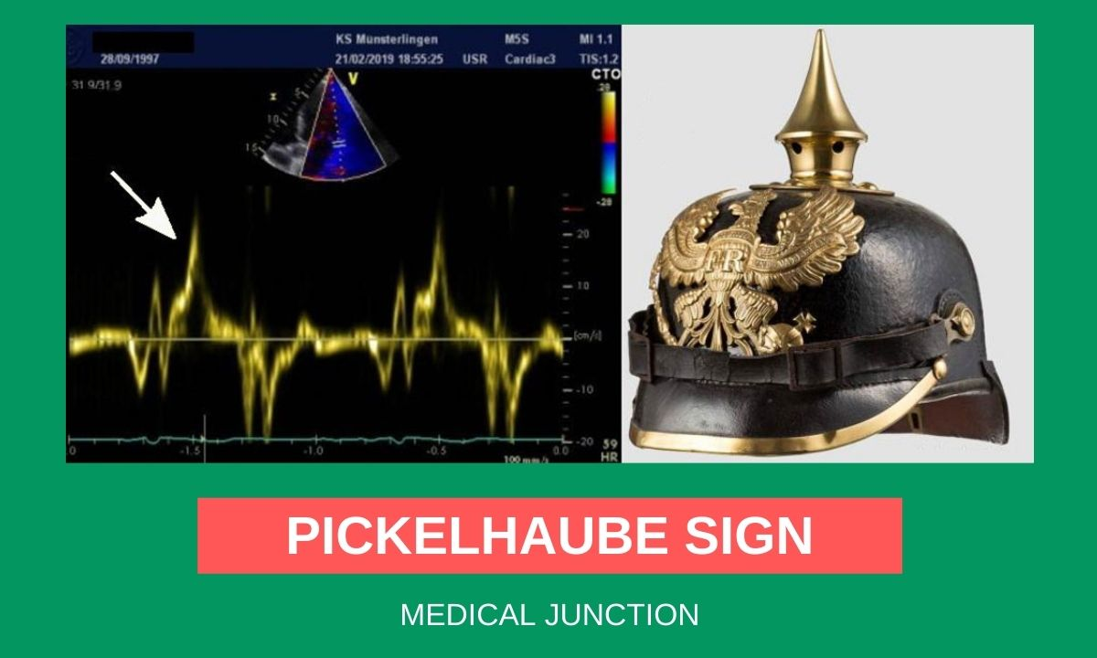 What is PICKELHAUBE SIGN?